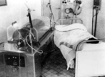 histoire de la dialyse : rein de necker