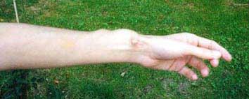 Fistule au bras gauche