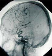 un cerveau fonctionnant normalement : le sang circule et oxygène les vaisseaux