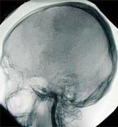 le cerveau d'une personne en état de mort encéphalique : le sang ne circule plus dans les vaisseaux, le cerveau est détruit