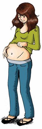 transplantation rénale grossesse